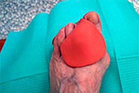 Lo stesso paziente con ortesi in silicone di protezione e separazione delle dita