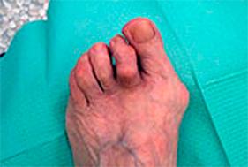 Paziente affetto da artrite reumatoide