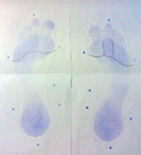 Esempio di impronta plantare ottenuta con plantografo a inchiostro che sarà utilizzata per la realizzazione del plantare