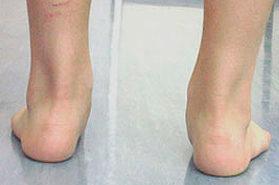 Esempio di piede piatto valgo in paziente pediatrico