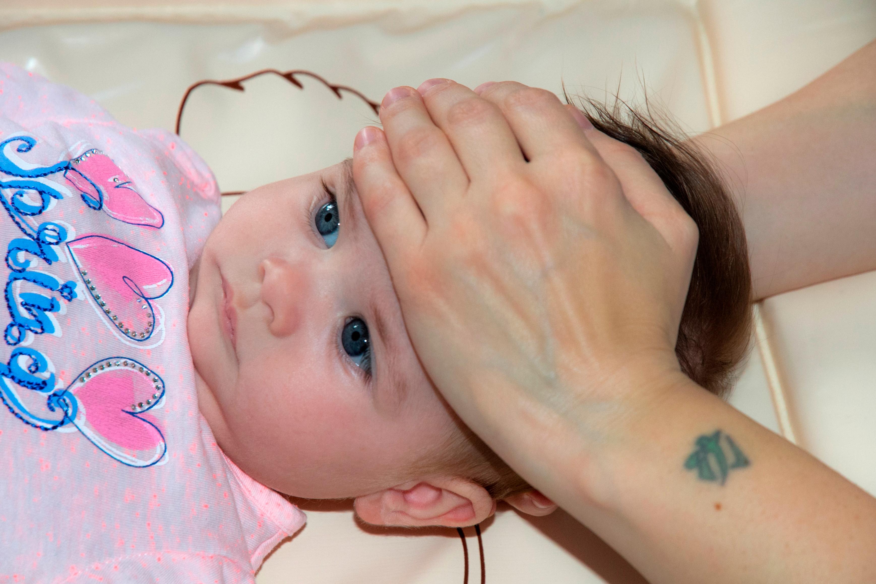 Trattamento del neonato con plagiocefalia